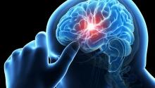Primul ajutor (3): Atacul cerebral